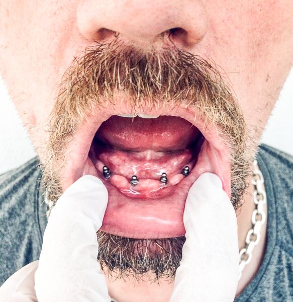 mand med implantater i munden