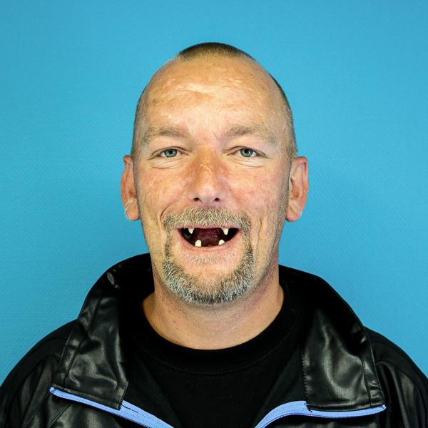 mand uden delprotese i munden